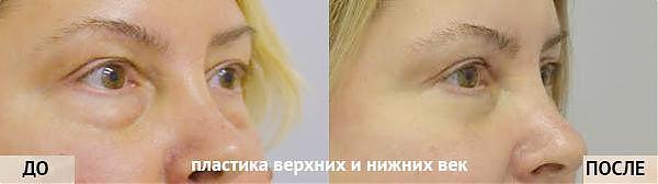 Женщина, которой сделали операцию по блефаропластике