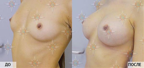увеличение груди за счет жира